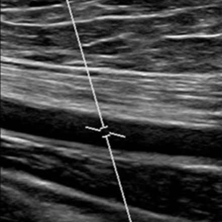 Centro Medico La Quintana - Ecocolordoppler arti inferiori arterioso