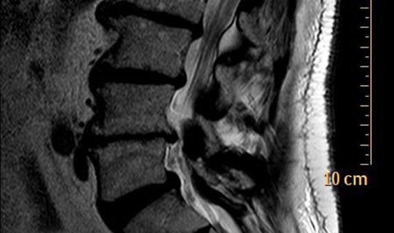 Centro Medico La Quintana - RM colonna cervicale, dorsale, lombare