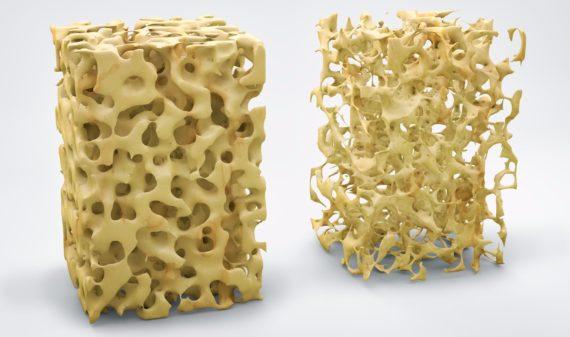 Brugnoni Group - Check-up osteoporosi