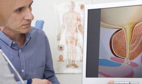 Brugnoni Group - Check-up prostata