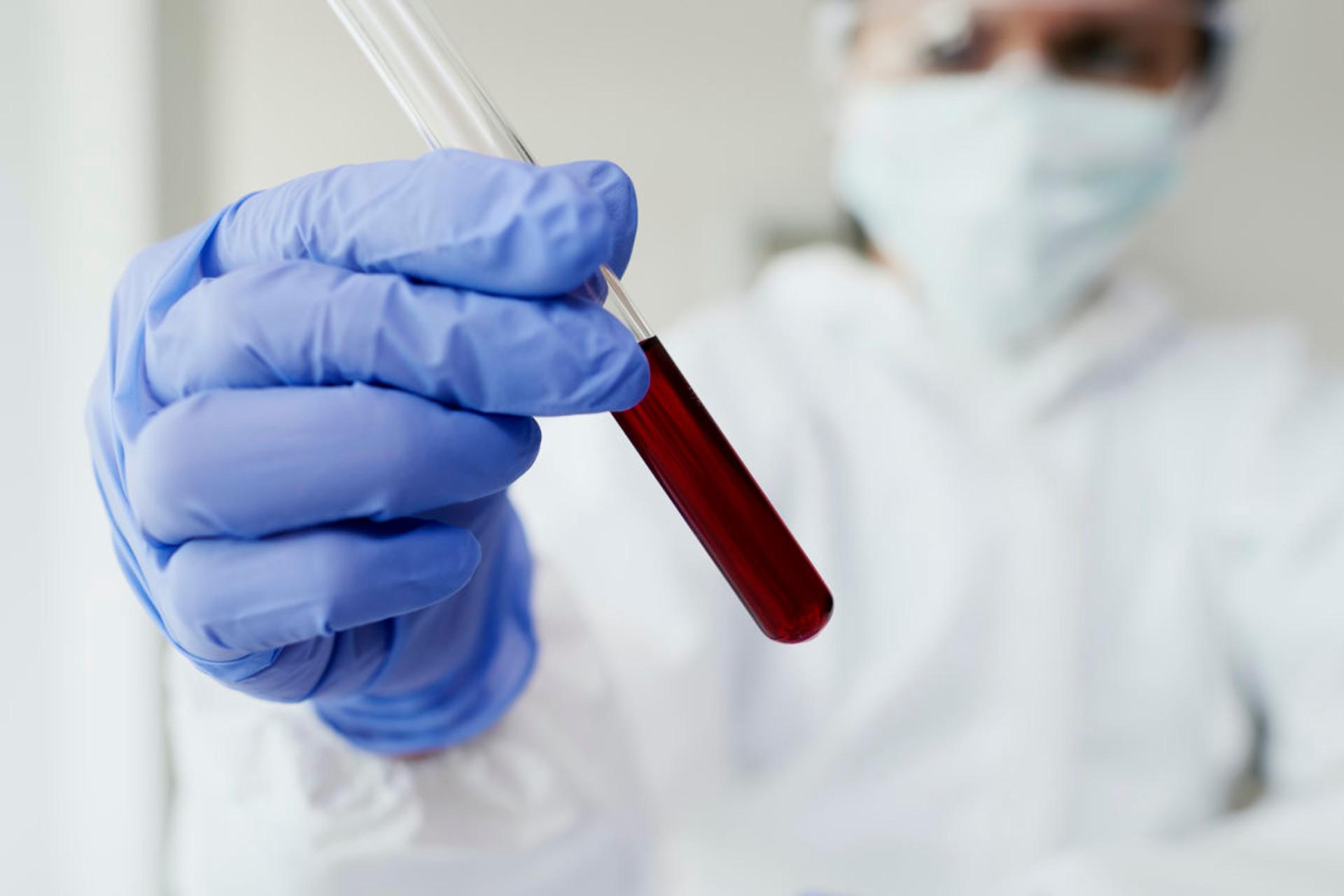 Brugnoni Group Sanita - Test Sierologico COVID19