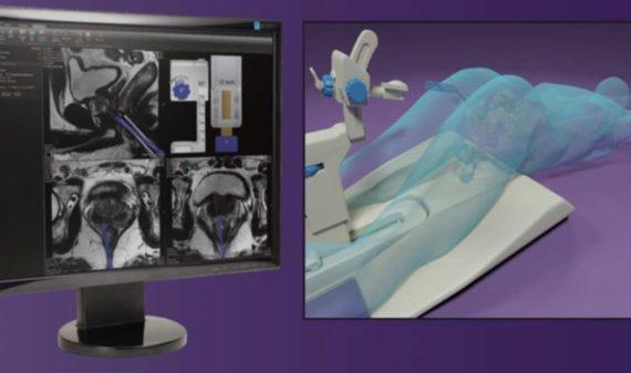 Biopsia prostatica RM guidata_sfondo